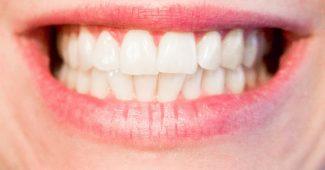 tippek az egészséges fogakért